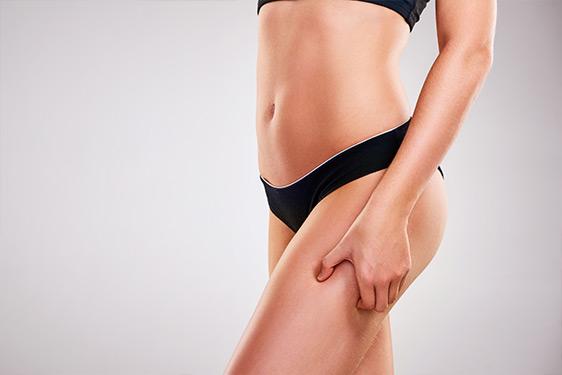 Oberschenkelstraffung – schöne Oberschenkel mit plastischer Chirurgie